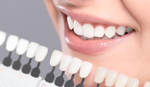 Dental Crown Basics